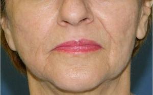 Riduri în jurul gurii- înainte de tratament